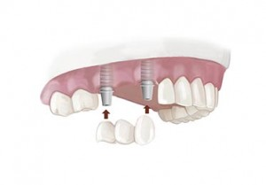 Fix Partial Denture (Bridge) Dental Implant
