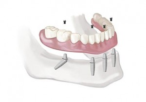 Full Denture Dental Implants