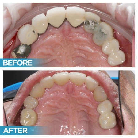Dental Implants (Before & After)